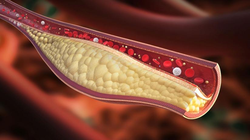 colesterolo-e-trigliceridi-preview-default